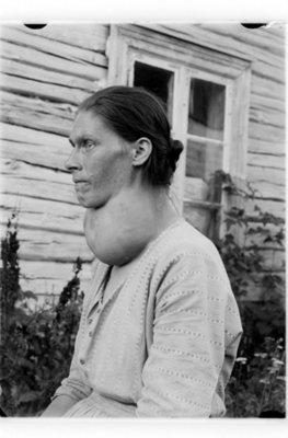 Most cases of goiter worldwide are caused by iodine deficiency.