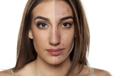 7 Common Mistakes that Cause Acne