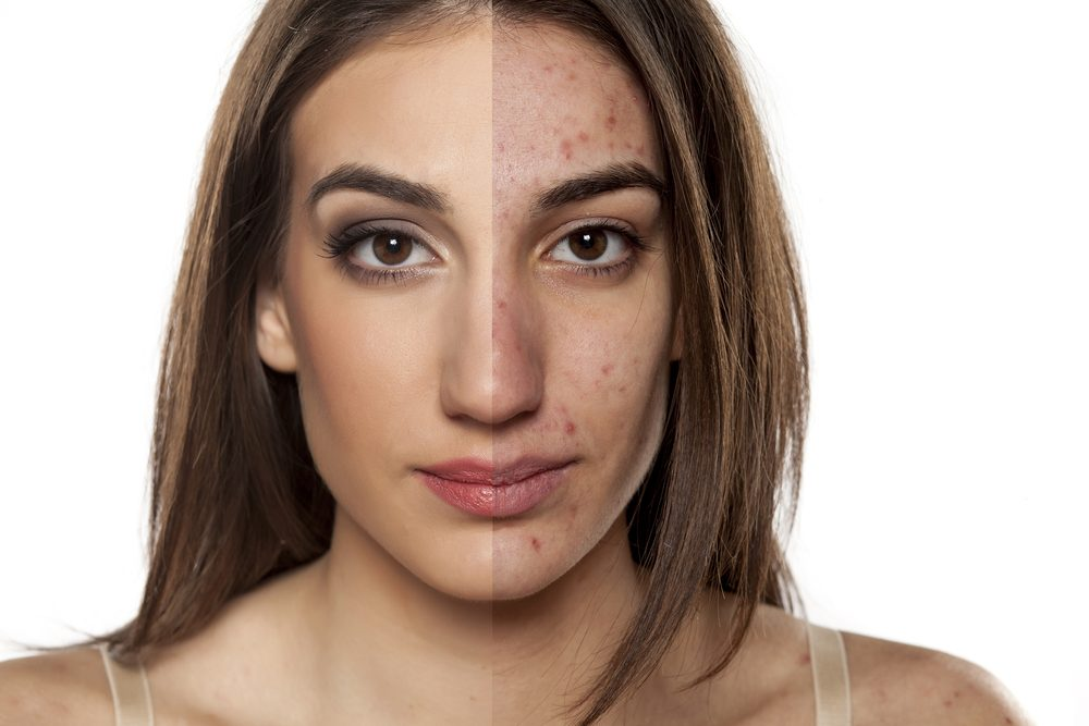 7 Common Paleo Mistakes that Cause Acne
